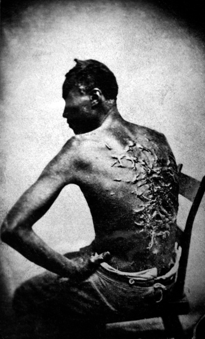 Scars of Peter, 1863. A Whipped Mississippi Slave, Photo Taken April 2, 1863, Baton Rouge, Louisiana. National Archives and Records Administration